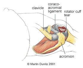 Rotator Cuff Calcific Tendonitis