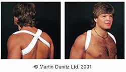 Broken Collar Bone (Broken Clavicle) in Depth - Shoulder