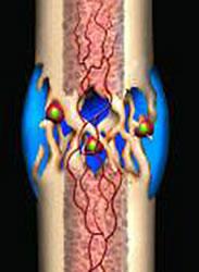 bone fracture healing explained - fractures & broken bones, Muscles