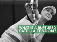 What is a Ruptured Patella Tendon?