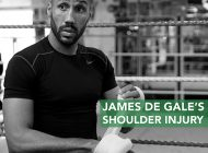 James De Gale's Shoulder Injury | PhsyioRoom.com Blog