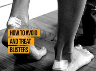How to Avoid and Treat Blisters | PhysioRoom.com Blog