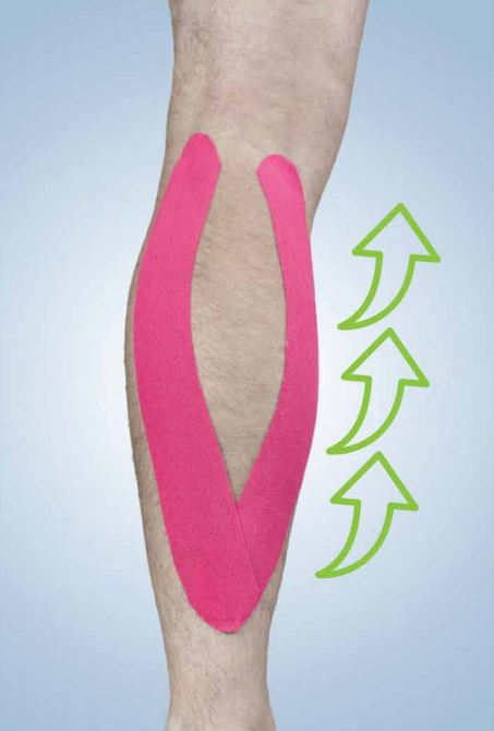 Kinesiology Tape - Application Guide - Calf